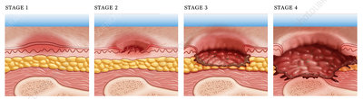 Progression of Pressure Sore