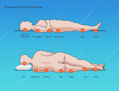Pressure Sore Locations, Diagram