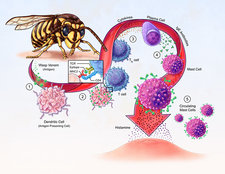 Allergy Development, illustration