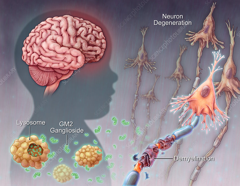 genetic mutations may explain a brain A single mutation may explain why zika suddenly erupted from obscurity to become the alarming re-emerging infectious disease it is today according to researchers from texas and china, the.