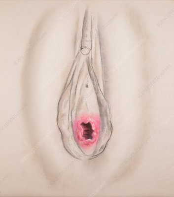 Typical Hymen, Illustration