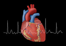 Atrial Fibrillation with EKG, Illustration