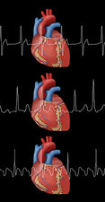 Heartbeat, AFib and Atrial Flutter, Illustration