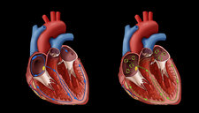 Heart and Atrial Fibrillation, Illustration