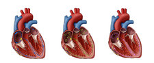 Heart, AFib and Atrial Flutter, Illustration