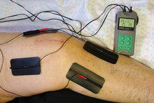 Transcutaneous electric nerve stimulation (TENS)