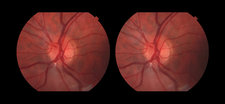 Branch Retinal Artery Occlusion, 1 in 5