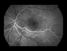 Branch Retinal Artery Occlusion, 3 of 5