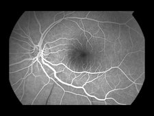 Branch Retinal Artery Occlusion, 4 of 5