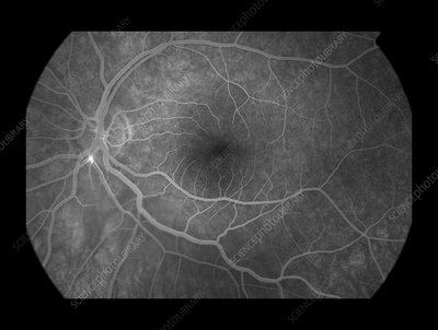 Branch Retinal Artery Occlusion, 5 of 5