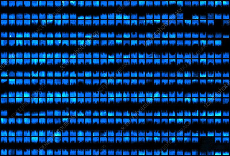 Microfluidic Chip, Bacterial Colonies