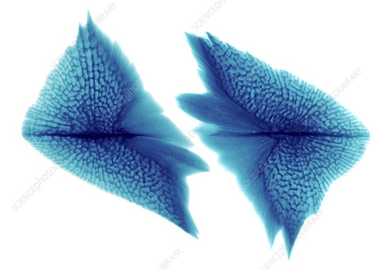 Sturgeon Scales, X-ray