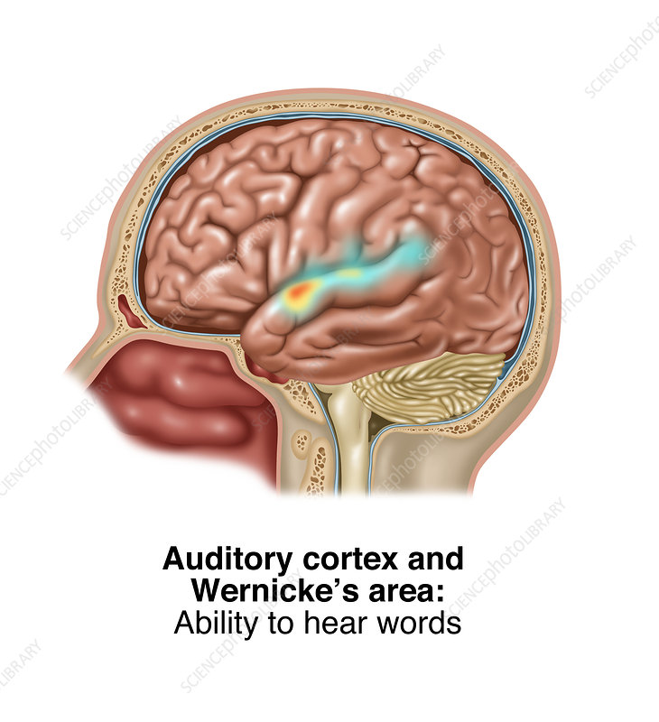 Auditory Cortex and Wernicke's Area, Illustration