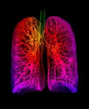 Human lungs, 3D CT scan