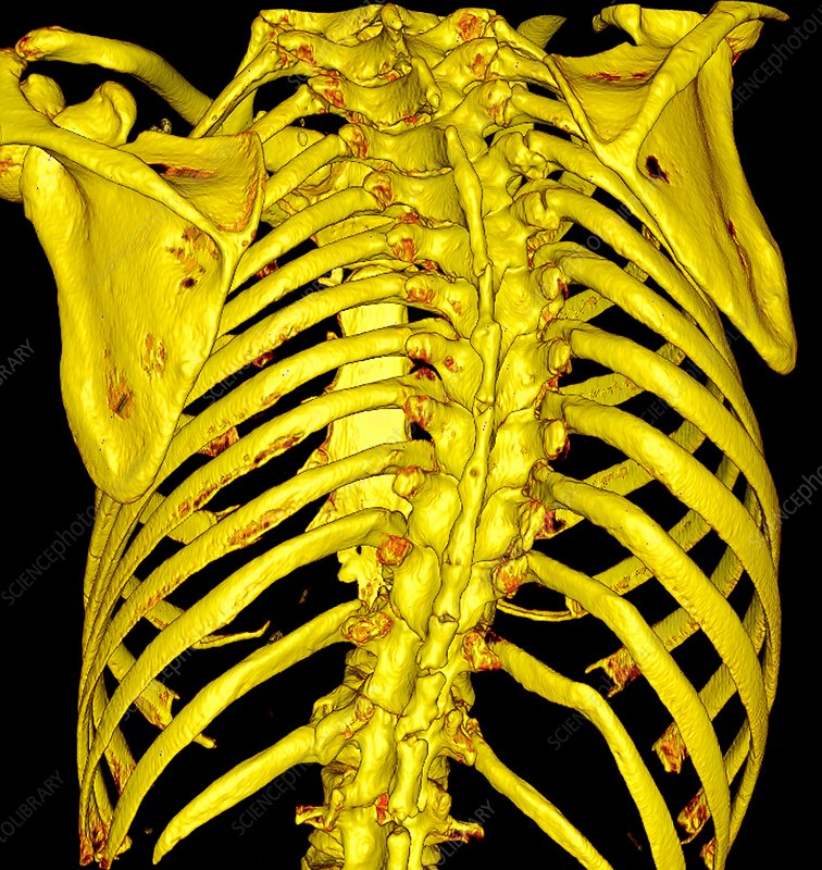 Scoliosis, 3D CT scan