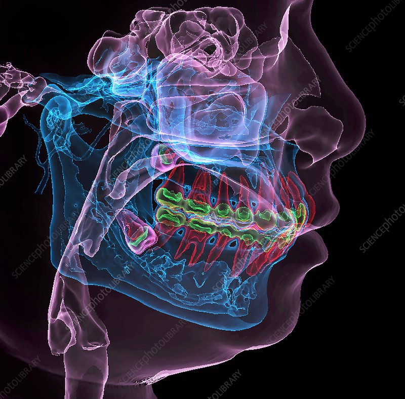 Impacted molar teeth, 3D CT scan