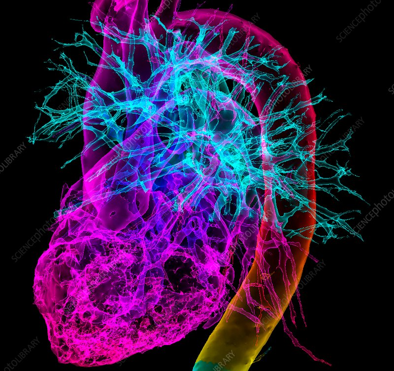 Human heart and great vessels, 3D CT scan