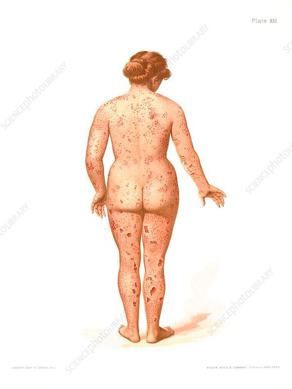 Secondary syphilis rash, illustration