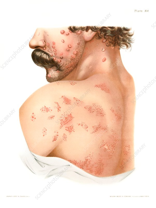 Secondary syphilis rash, illustration