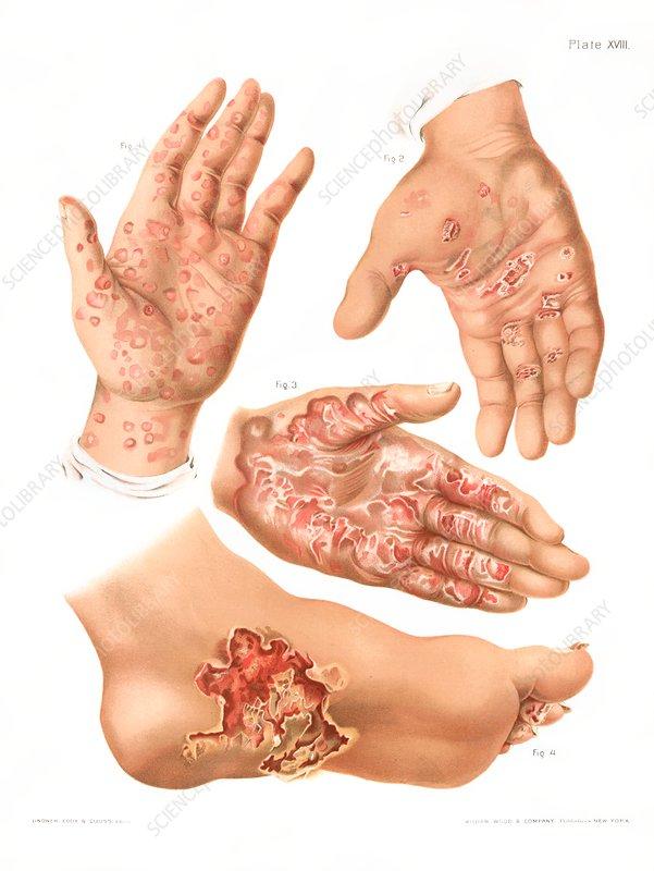 Secondary syphilis, illustration