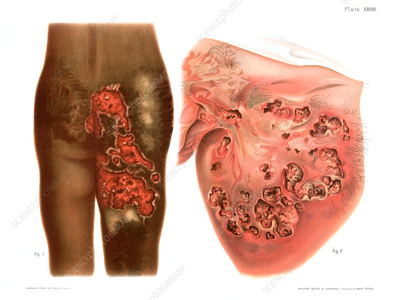Tertiary syphilis lesions, illustration - Stock Image - C030/8450 ...