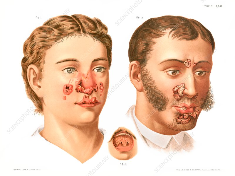 Tertiary syphilis lesions, illustration