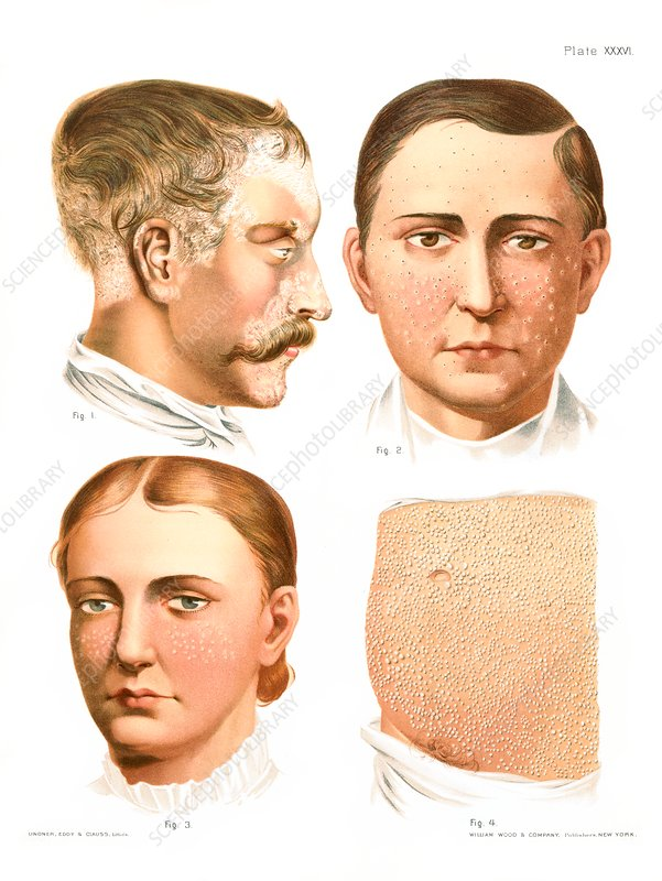 Skin disorders, historical illustration