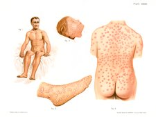 Smallpox and chicken pox, illustration