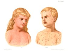 Measles and German measles, illustration