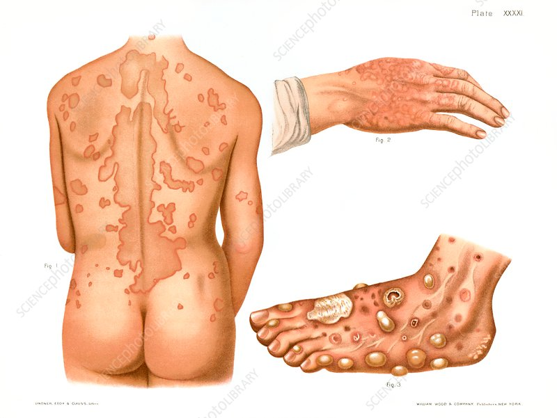 Erythema, historical illustration