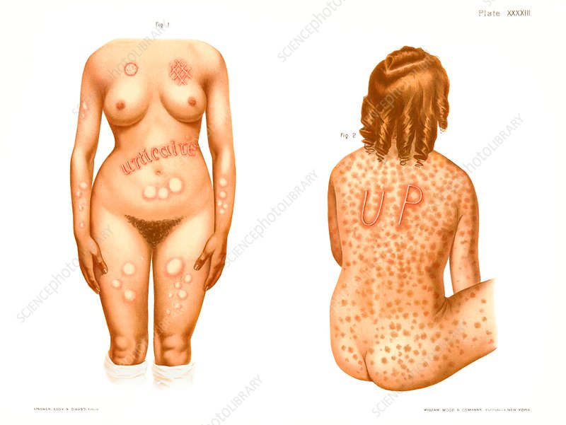 Urticaria, historical illustration