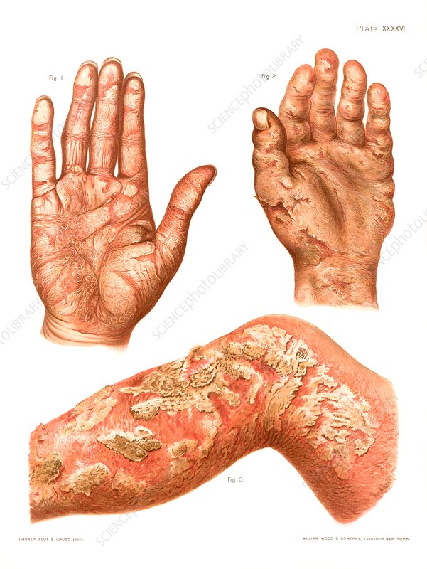 Psoriasis and eczema, historical illustration