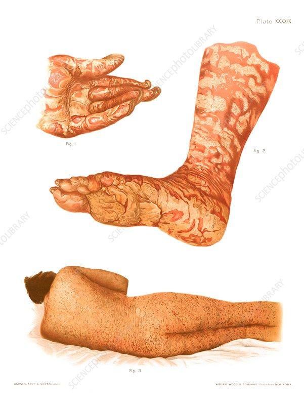 Dermatitis and pityriasis, illustration
