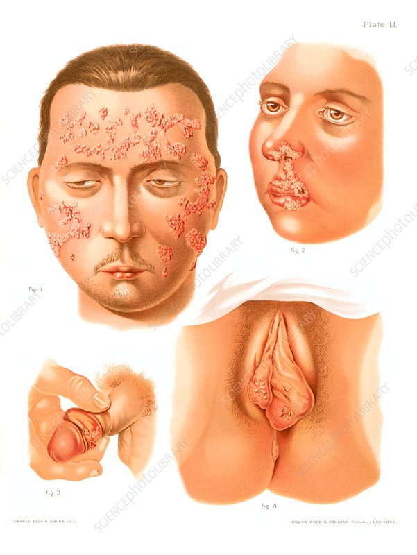 Shingles and herpes, historical illustration