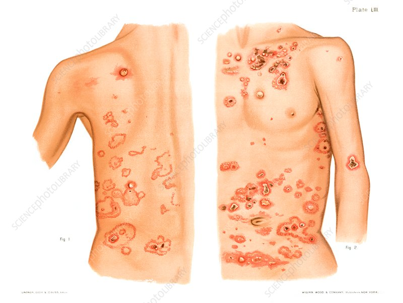 Dermatitis herpetiformis, illustration