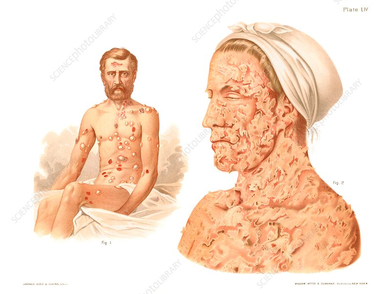 Pemphigus, historical illustration