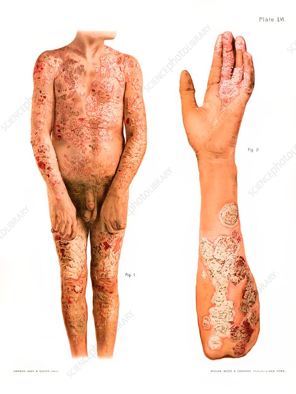 Psoriasis, historical illustration
