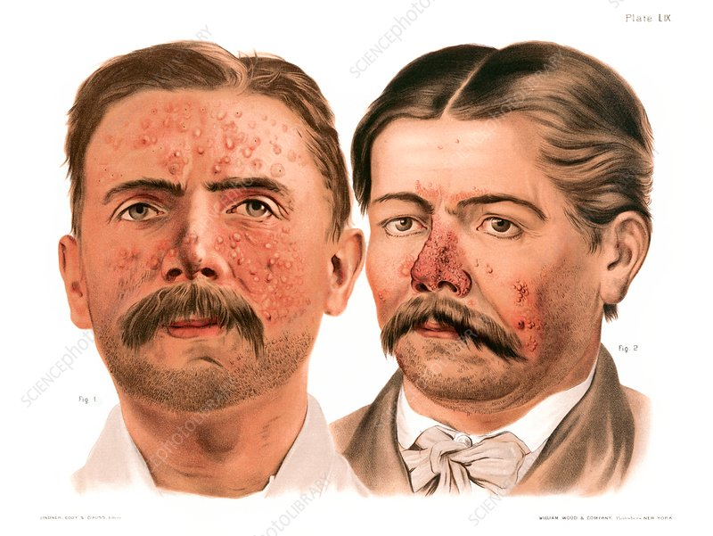 Acne vulgaris and acne rosacea, illustration