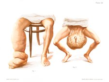 Elephantiasis, historical illustration