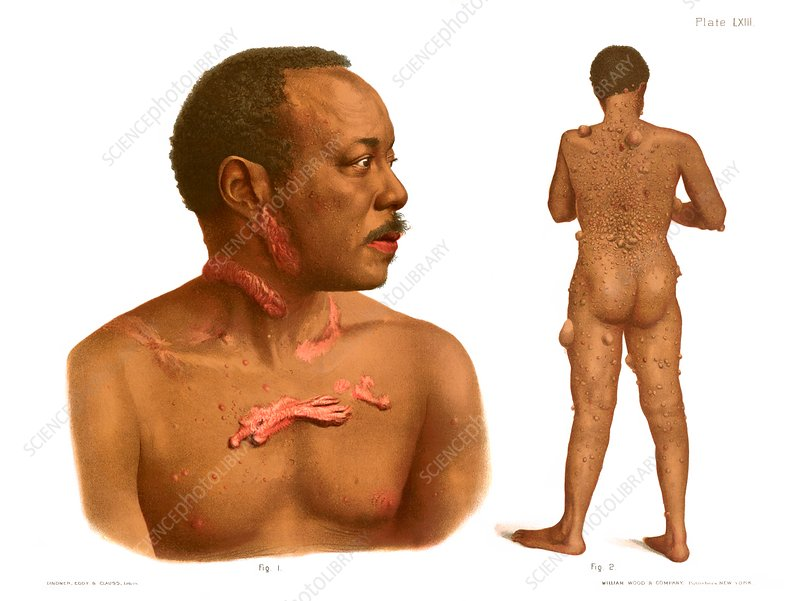 Keloids and fibromas, illustration