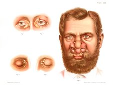 Xanthelasma and rhinoscleroma, illustration