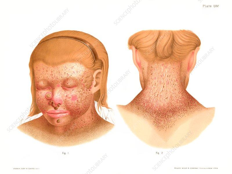 Xeroderma pigmentosum, illustration