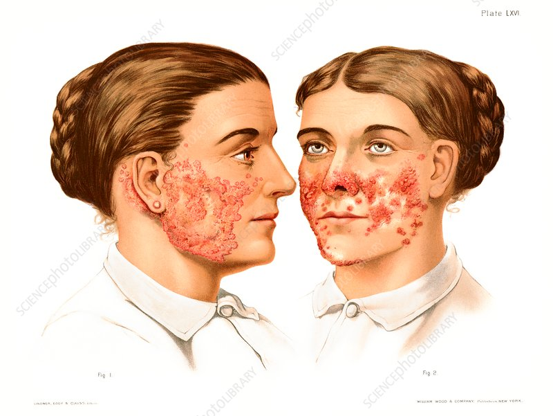Lupus erythematosus and vulgaris, illustration