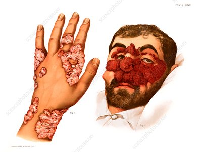 Cutaneous tuberculosis, illustration