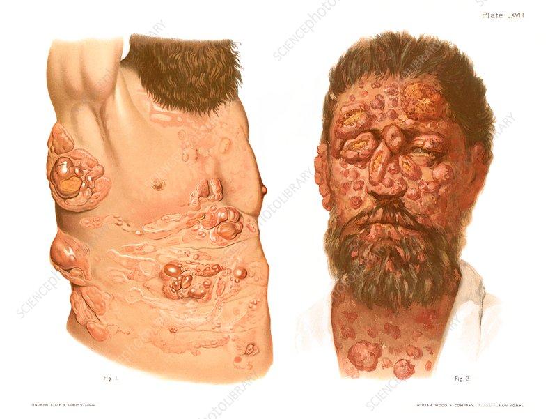 Sarcoma, historical illustration