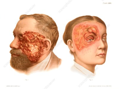 Epithelioma and rodent ulcer, illustration
