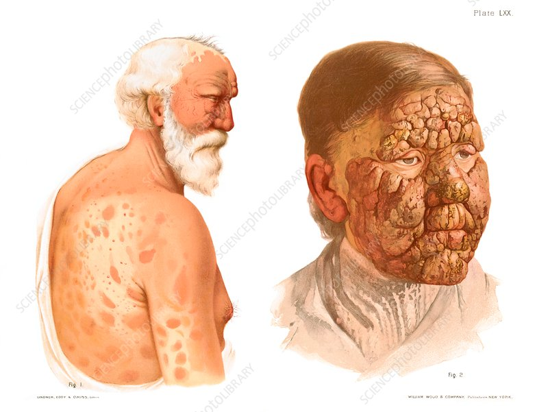 Leprosy, historical illustration