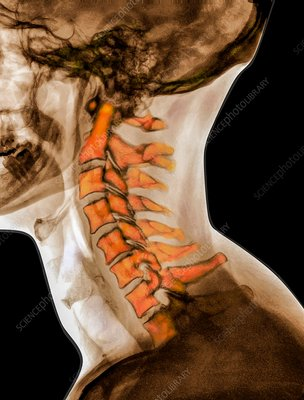 Curvature of the cervical spine, X-ray