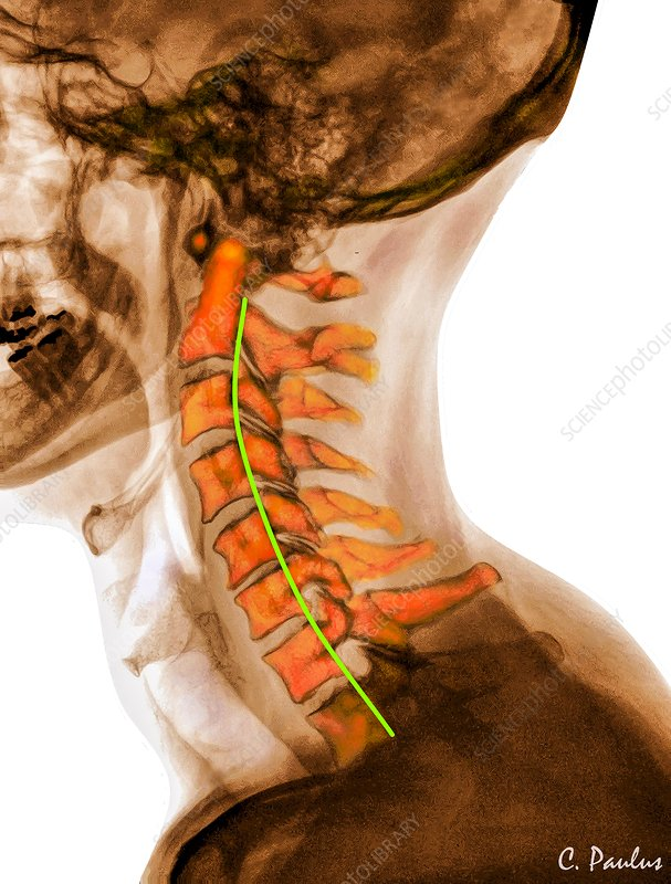 Curvature of the cervical spine, X-ray - Stock Image - C030/8555