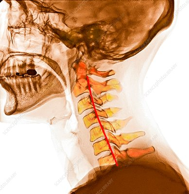 Straightened neck curvature, X-ray